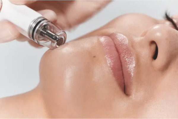 Diamond Glow facial