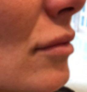 Juvederm lip